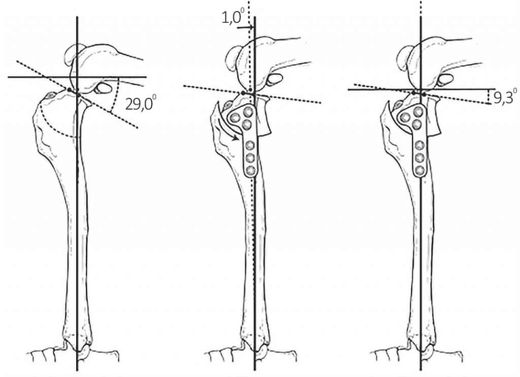 Tibial plateau leveling osteotomy. From Hildreth B. E.,Marcellin-Little D. J., Roe S. C., & Harrysson O. L. A. (2006). In vitroevaluation of five canine tibial plateau leveling methods. Americanjournal of veterinary research, 67(4), 695.