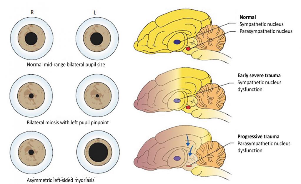 Сотрясения мозга расширения одного зрачков