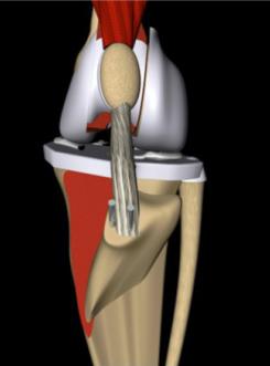 Установка спицы в коленный сустав у собак строение атланто затылочного сустава
